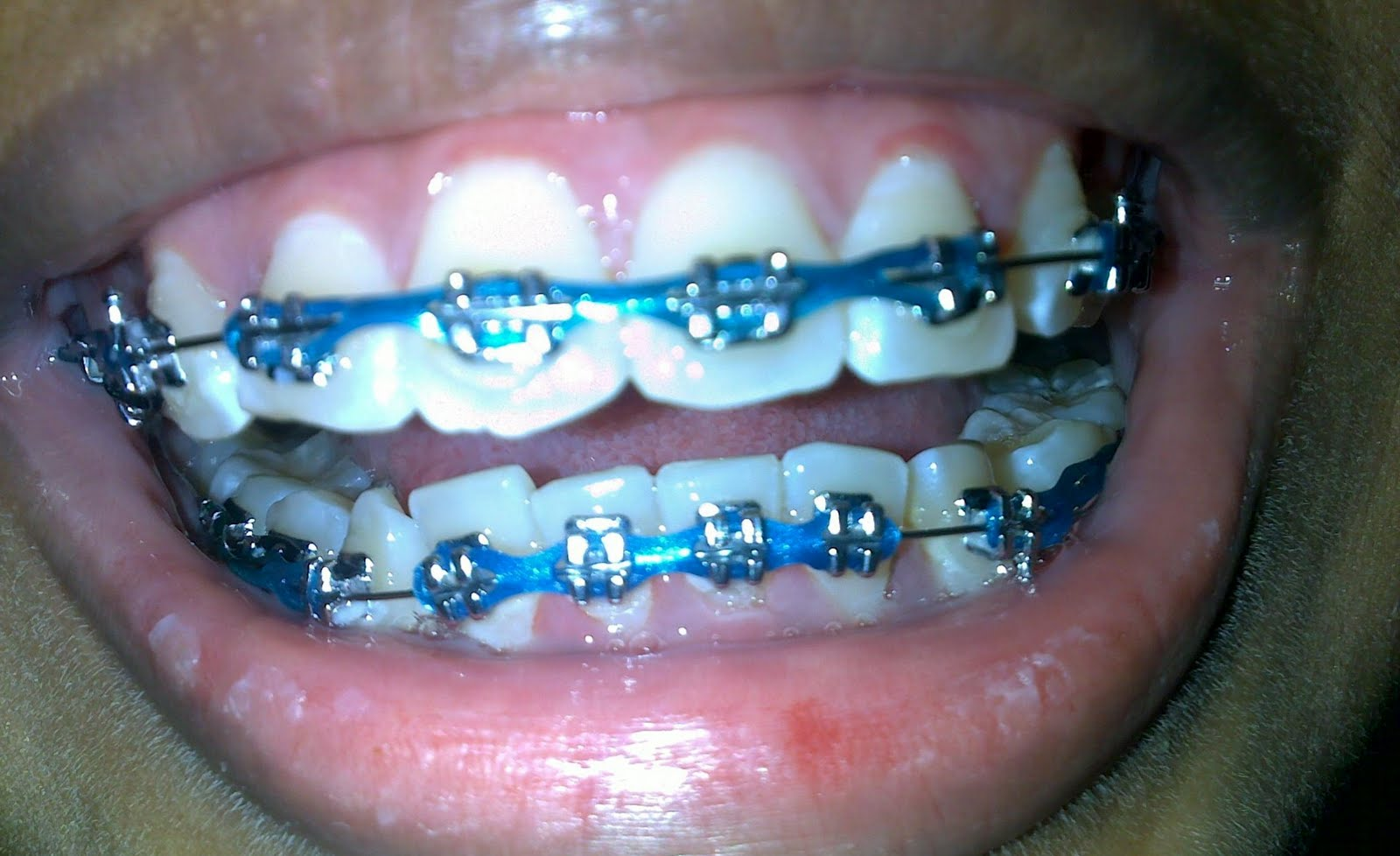 Light pink braces for teeth