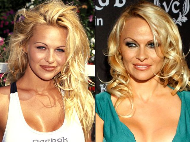 Information Hub Celebrities Before And After Plastic Surgery