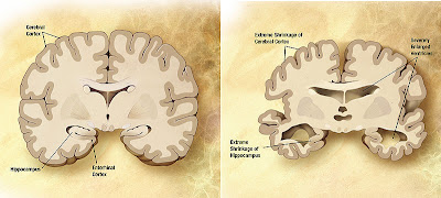 Comparison of a normal aged brain (left) and an Alzheimer's patient's brain (right). Differential characteristics are pointed out.