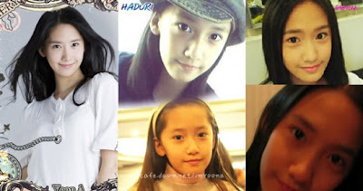 Yoona Plastic Surgery Before and After Eyelid Surgery and Nose JobYoona Plastic Surgery Nose