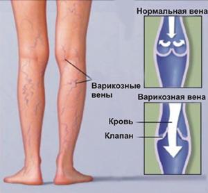 Варикоз половых органов во время беременности симптомы