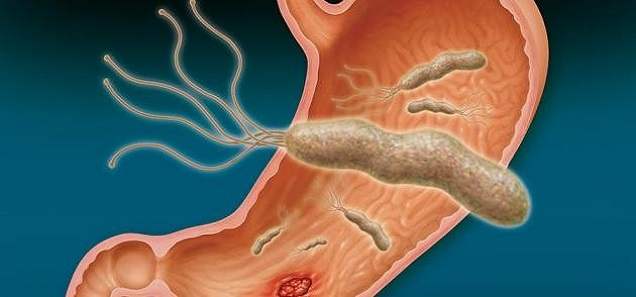 أسرع وأقوى علاج طبيعى لجرثومة المعدة التى تسبب التهابات و ألام حادة تصل الى القرحة
