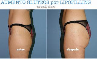 aumento_gluteos_grasa_cirujano_plastico