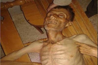Foto Kelaparan Warga Suriah Akibat Dikepung
