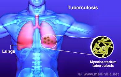 Tuberculosis Follow-up