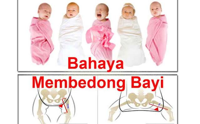 Hati-hati! Apa Bayi Perlu Dibedong? Ikuti Ulasan Berikut Agar Anda Tidak Keliru Yang Berakibat Fatal