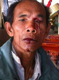 Injured by Hun Sen police at January 27 2014