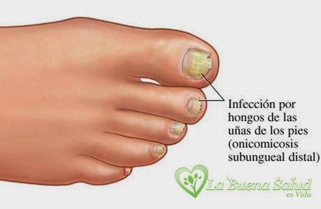 Los esquemas medicamentosos del tratamiento del hongo de las uñas en los pies