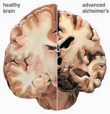 Pengobatan Alternatif untuk Alzheimer