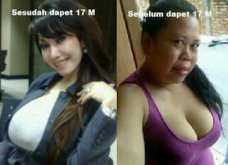 foto inong melinda dee before and after
