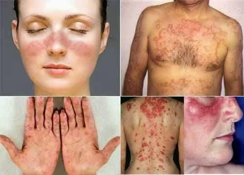 Penyebab Penyakit Lupus dan Cara Mengobatinya