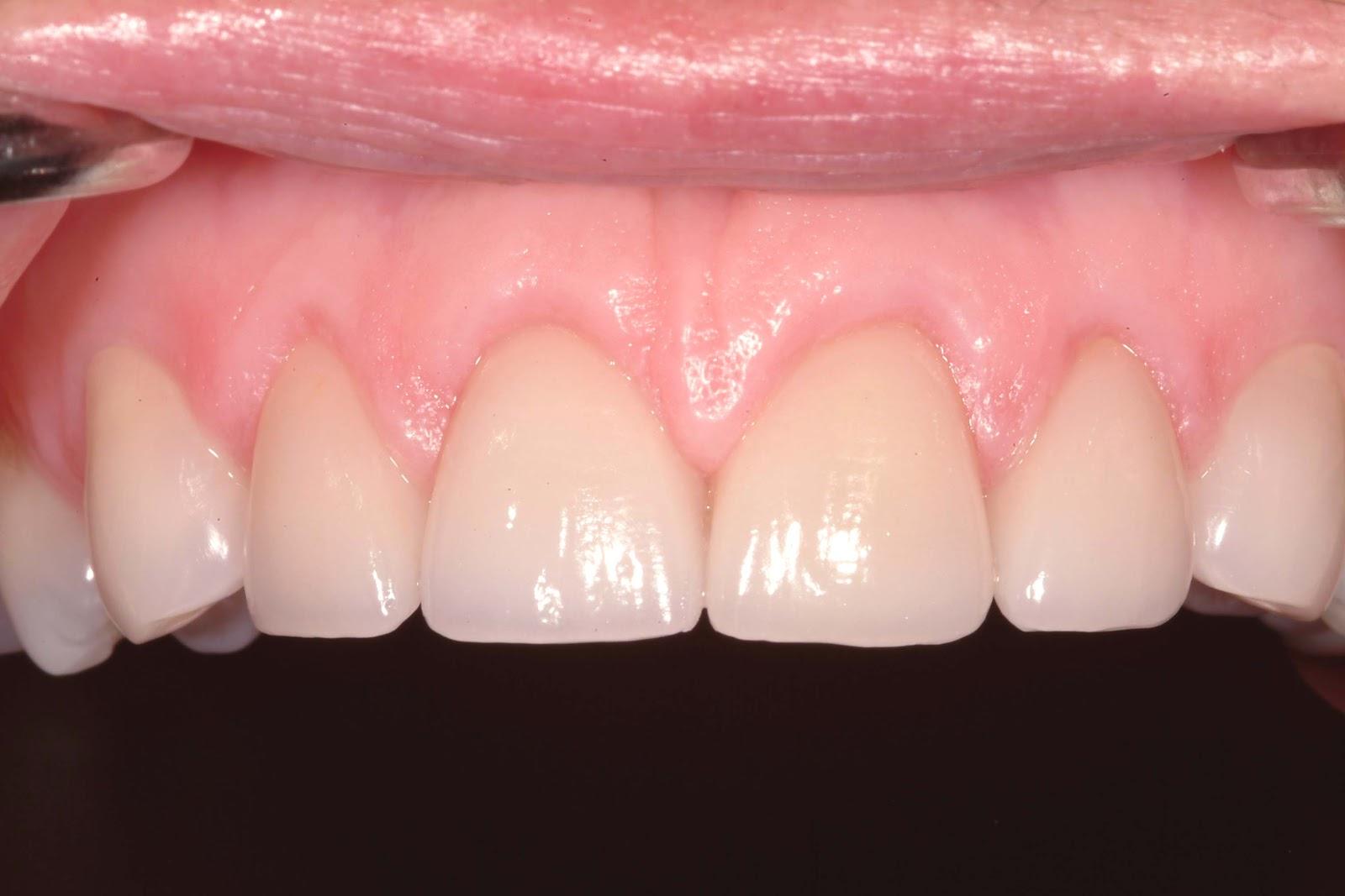 Gum teeth