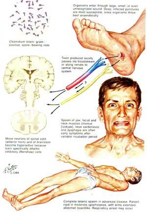 tetanus, orang tetanus, bakteri penyebab tetanus, gambar tetanus, bayi terkena tetanus
