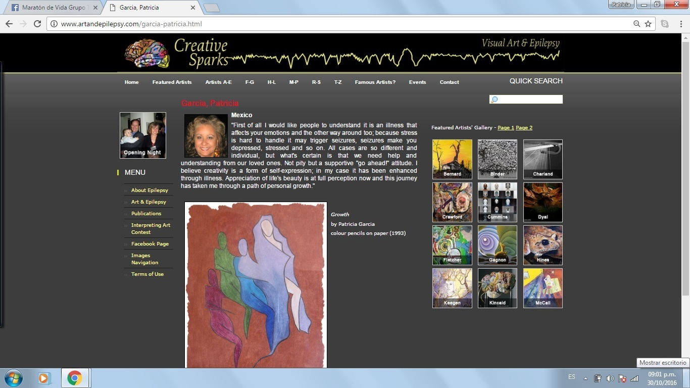 My art and epilepsy