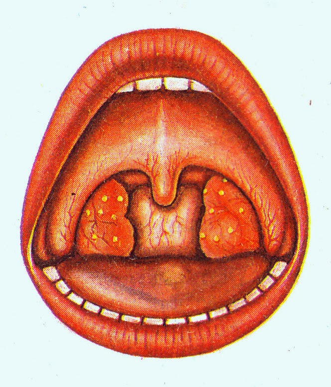 Tonsillectomy infection