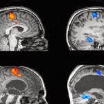 How Brain MRI Images Normal and Abnormal? - Tips Healthy Brain