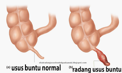 http://obatradangususbuntukpadaanak.blogspot.com/