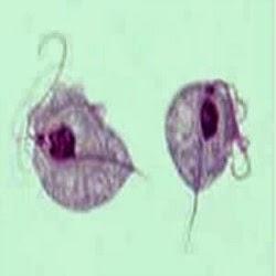 Câncer de próstata, uma nova DST?