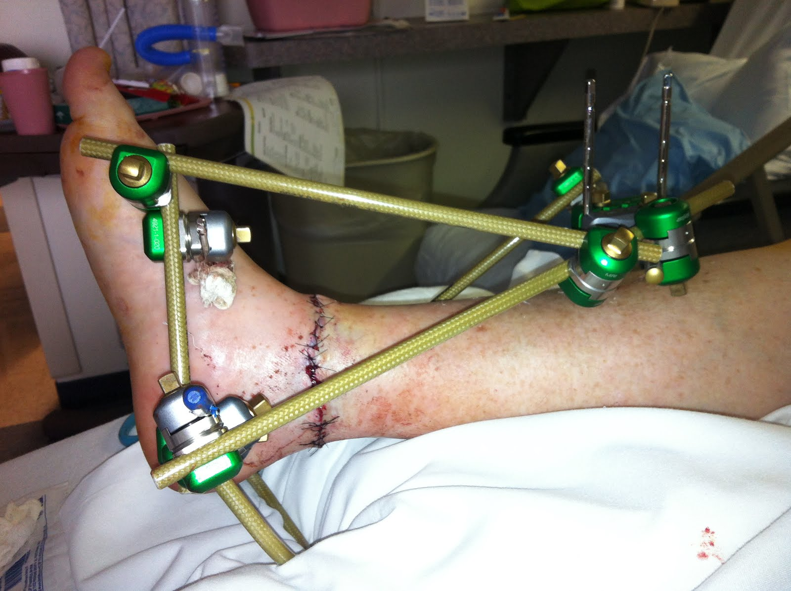 External Fixation Device Leg-2.bp.blogspot.com