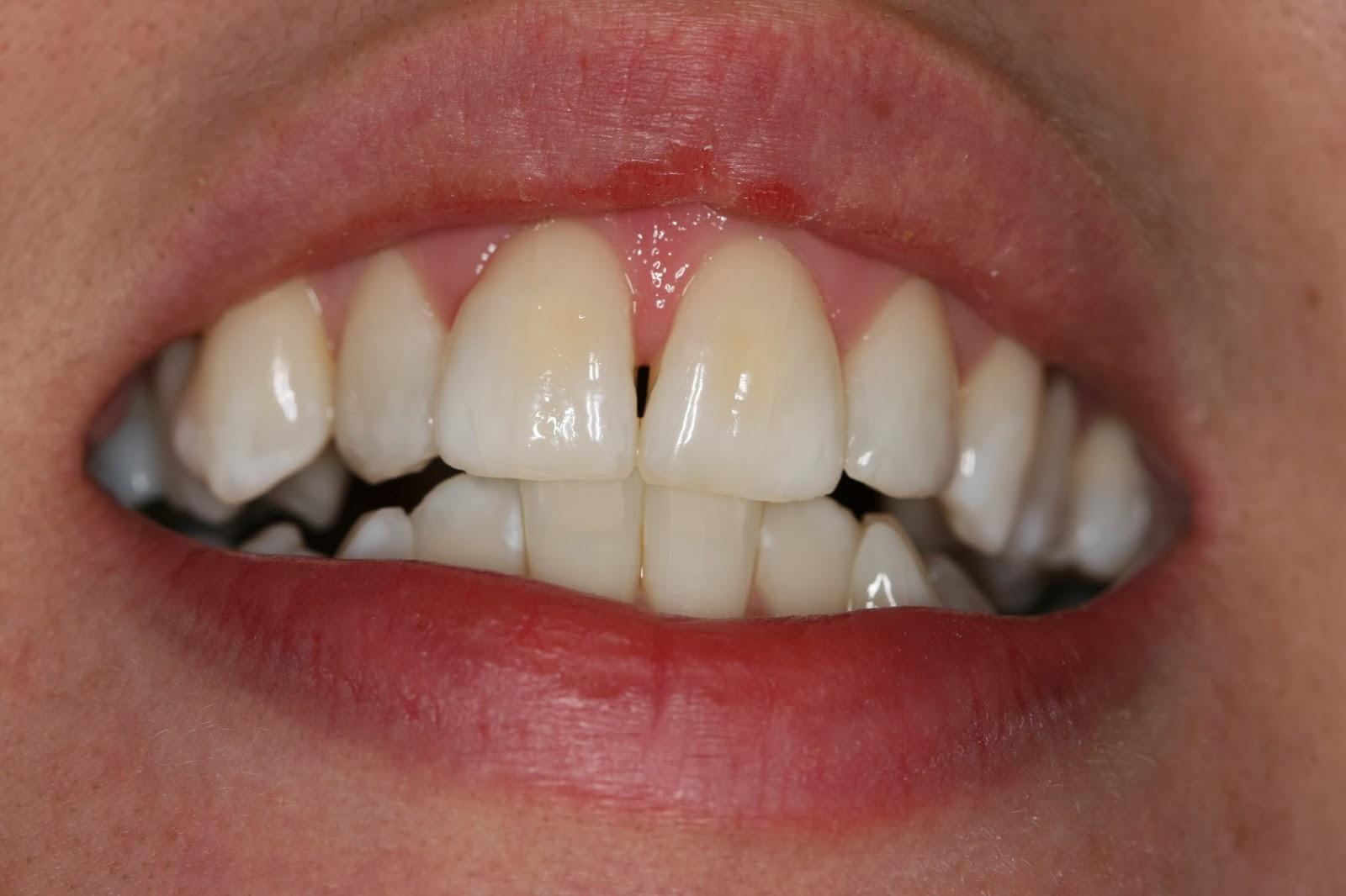 leczenie trudnych przypadków dentystycznych w gabinecie w Krakowie