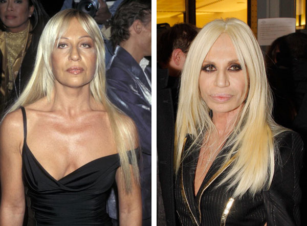 donatella versace plastic surgery before and after nose
