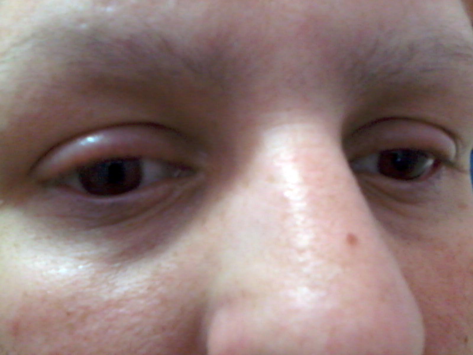 Máscara de pele de cara com vitamina A e e