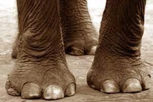 cara menghindari penyakit kaki gajah