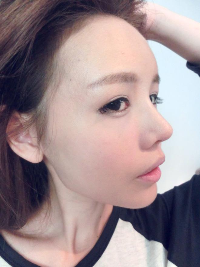 qiuqiu great fantastic results nose job fatgrafting