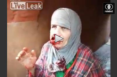 Ngeri Mulut Makcik Pecah Kena Peluru Video Cahaya Air