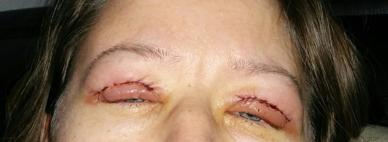 opereret øjenlåg