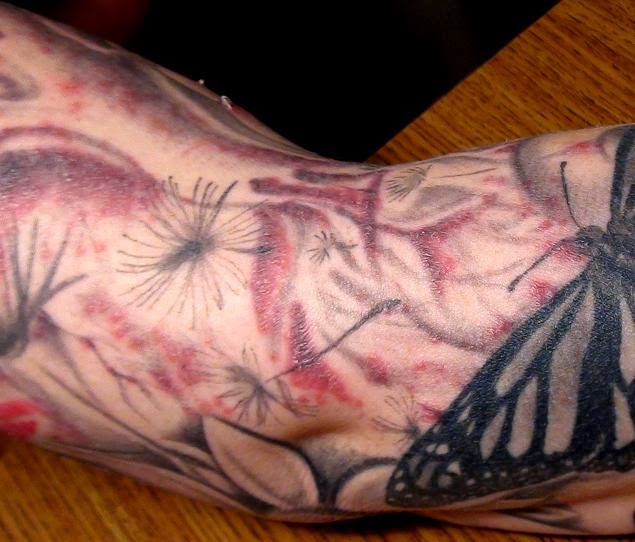 tattoo infections