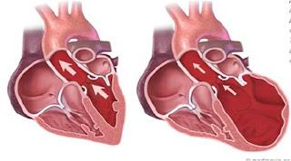 Penyakit Otot Jantung