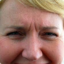 Natural Ways To Get Rid Of Frown Lines