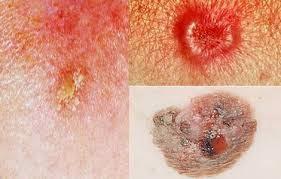 Obat Untuk Penyakit Kanker Kulit