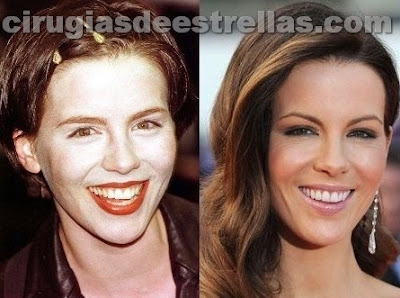 kate beckinsale antes y despues