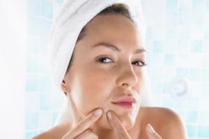 Meilleur traitement acné