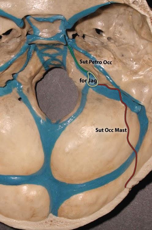 Расположение швов затылочной кости и венозных синусов петро-базилярный шов яремное отверстие затылочно-сосцевидный шов