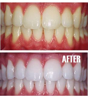 Kumpulan Artikel Ringan Efek Samping Akibat Teeth Whitening