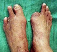 Diabetes melitus dapat menyebabkan kaki di amputasi