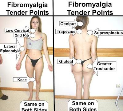 fibromyaliga