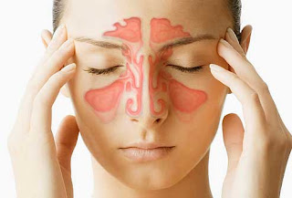 Mengobati Sinusitis Akut Secara Alami