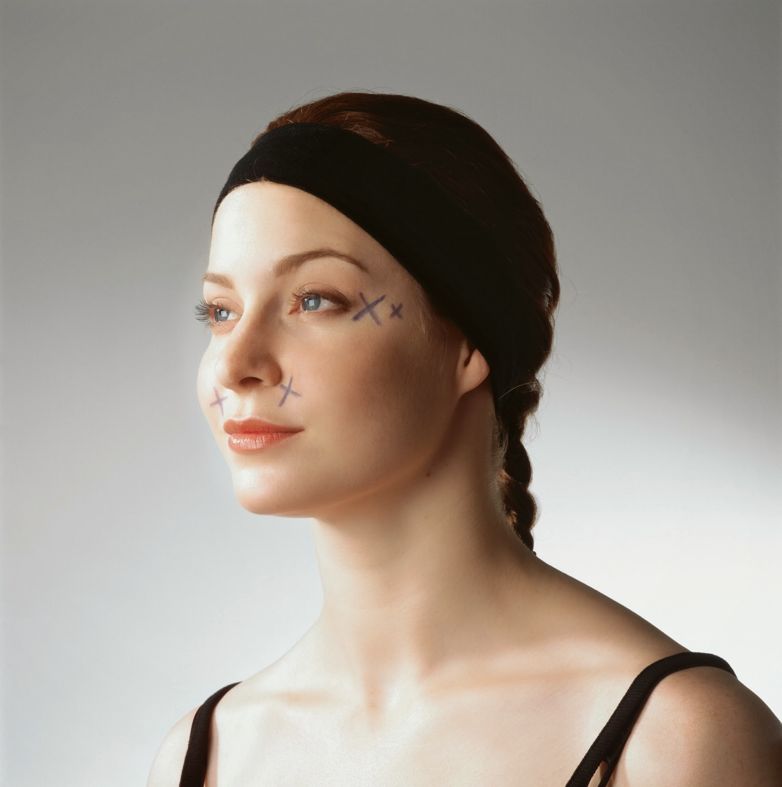 Botox Indications