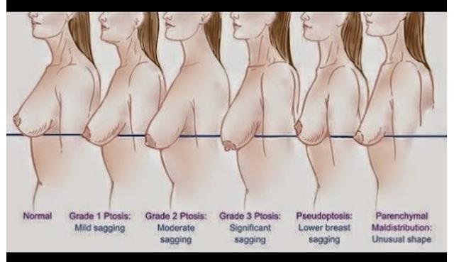 Ternyata Ini Penyebab Payudara Kendur, Upss jangan Khawatir Ini Ada Tips Untuk Mengencangkan Kembali