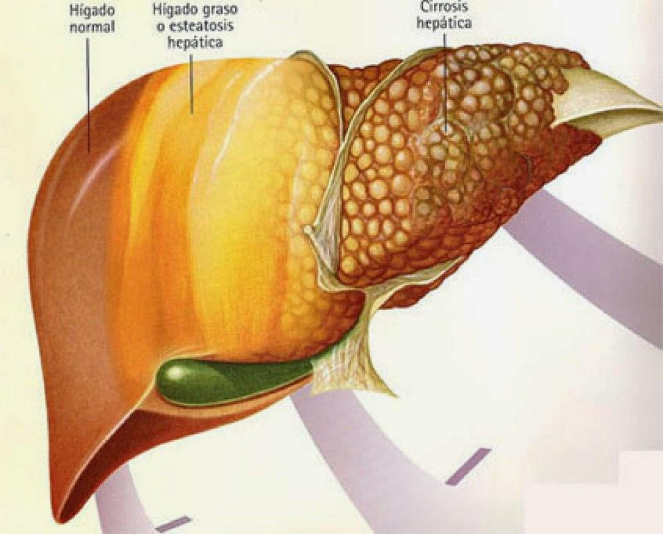 remedios caseros para higado graso