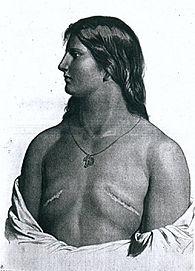 Mujer Skopsty con los pechos amputados. Lacasamundo.com