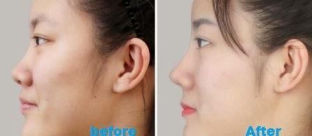 Cara Memancungkan Hidung Secara Alami dan Aman Tanpa Operasi