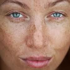 face spots