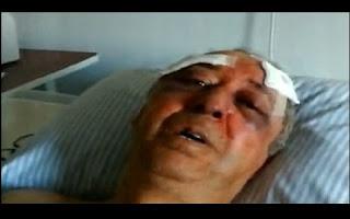 Bandidos torturam idoso para roubar R$ 100 mil no sul de Minas. Nervosa, vítima não conseguiu abrir cofre e foi agredido com barras de ferro e coronhadas. O idoso de 65 anos foi torturado por bandidos dentro de casa em Guaxupé, no sul de Minas Gerais. Os criminosos queriam R$ 100 mil que estavam no cofre que havia na residência.