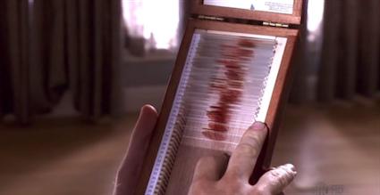 Dexter.kan.ornekleri.png