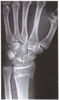 how to read a wrist x ray